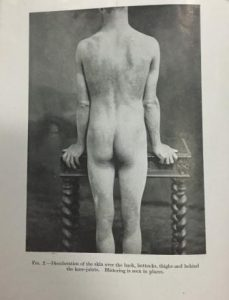 Image shows discolouration of the skin over the back, buttocks, thighs and behind the knees