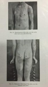Photograph of a naked man, with discolouration and blistering of his skin