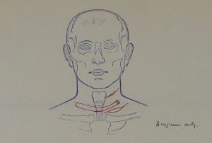 Illustration from the post mortem of Maurice Tribe showing injuries to throat, MEPO