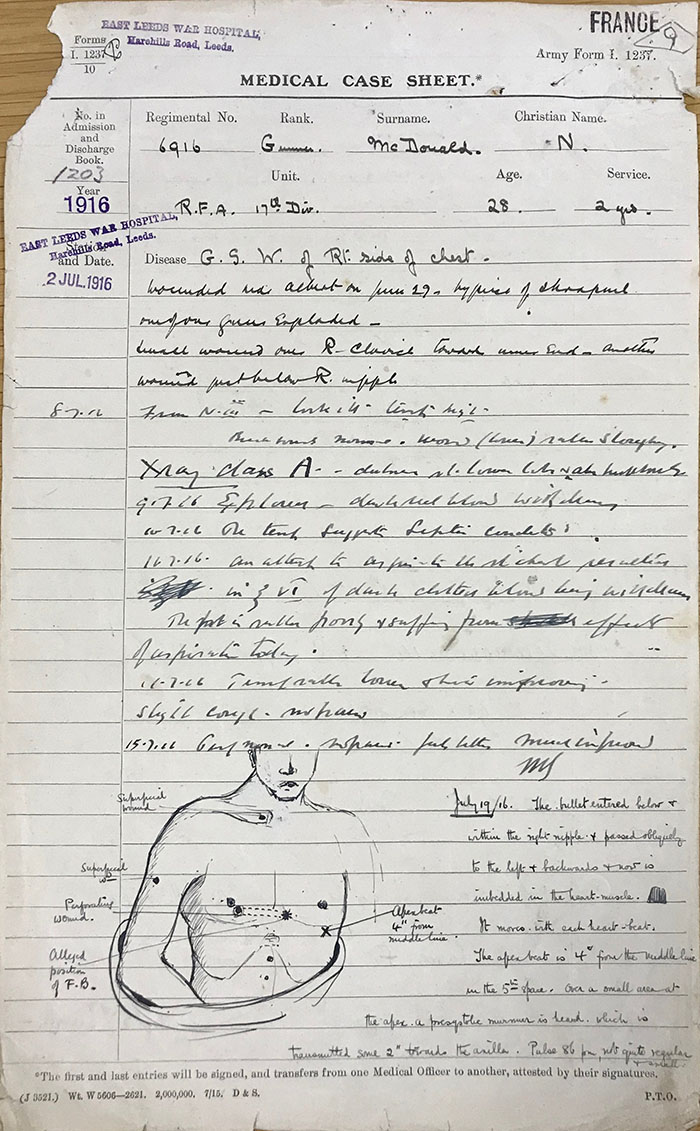 The medical case sheet (reference MH 106/2175/4) for Gunner Neil McDonald, of the Royal Field Artillery. The page includes McDonald's personal details, and handwritten doctor's notes alongside an illustration of the patient's torso.