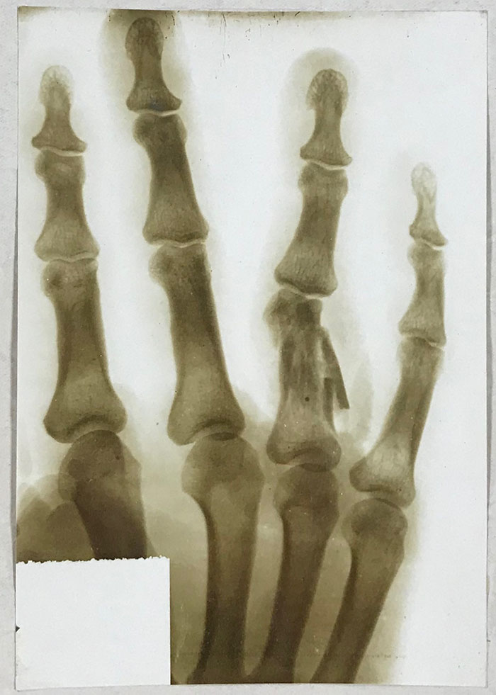 An x-ray of cadet Theophilus Talbot's injured right hand (reference MH 106/2175/39).